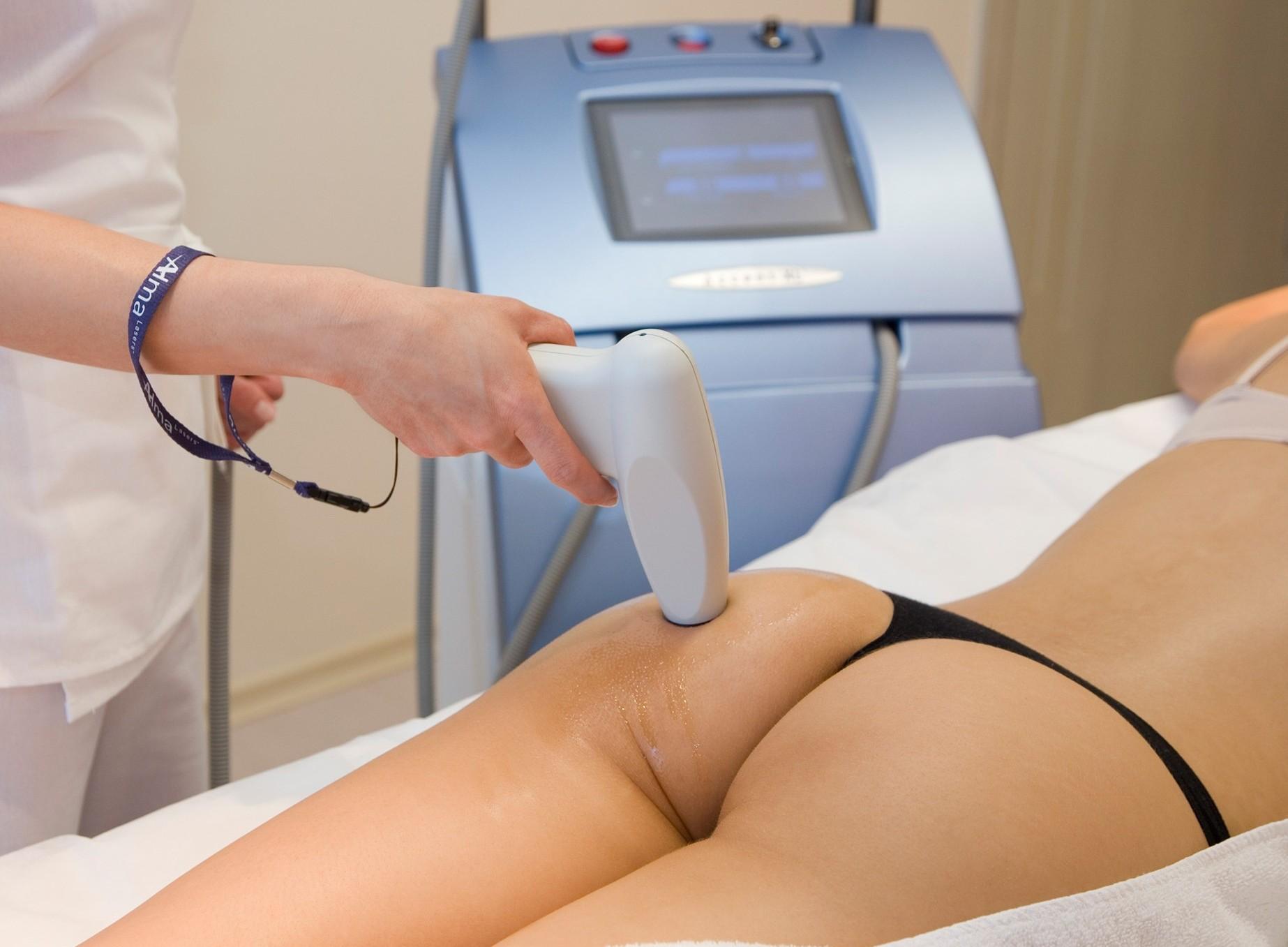 Лазерная терапия для беременных 33